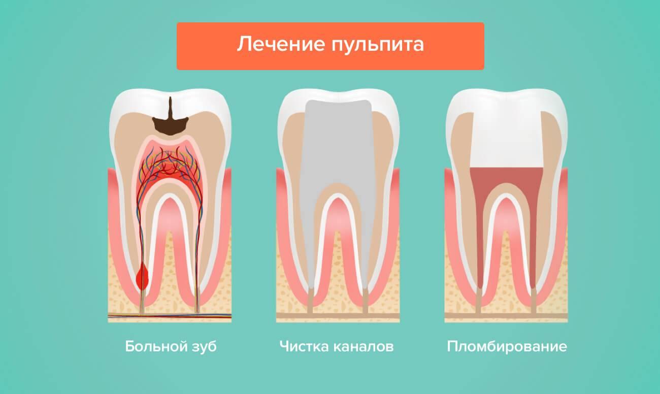 Методы пломбирования зубных каналов