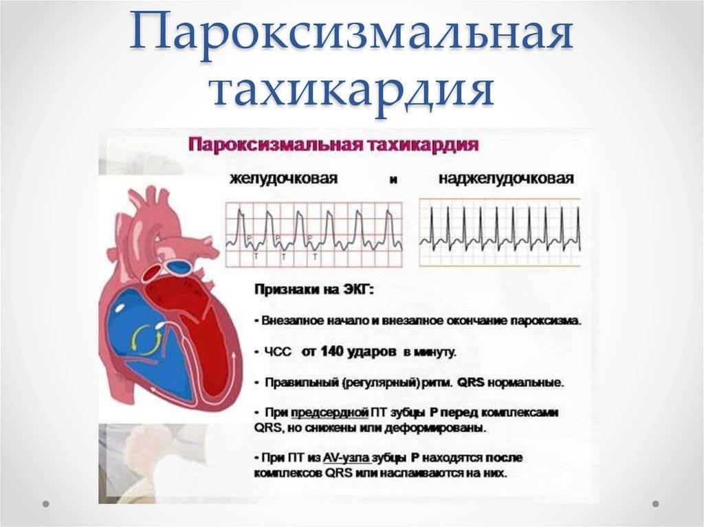 Почему перед месячными болит сердце – причины