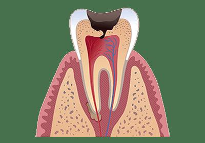 Гранулирующий периодонтит