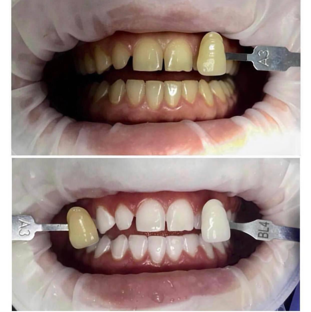 Сколько держится отбеливание зубов