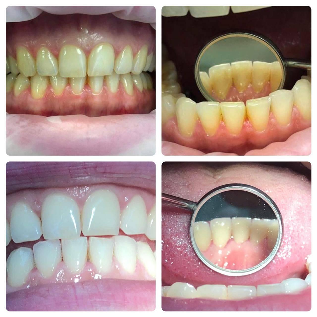 Профессиональная чистка зубов: показания, противопоказания, методики