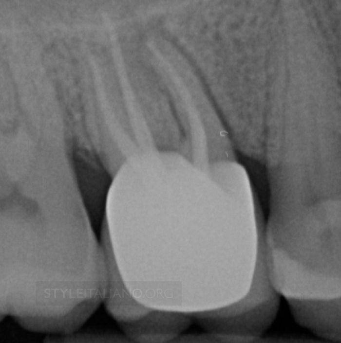 Вертикальный перелом корня зуба: этиология, диагностика, лечение и профилактика