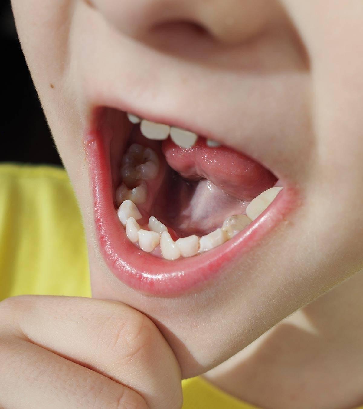 Полиодонтия (гипердонтия) зубов у человека: фото, лечение, признаки