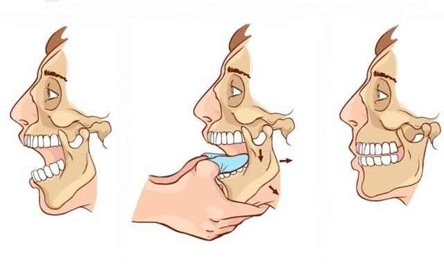 Тризм челюсти: почему сводит зубы и жевательные мышцы, в чем причины патологического явления?