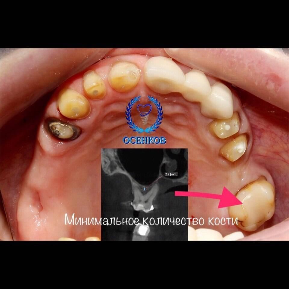 Болит костная ткань зуба после удаления зуба