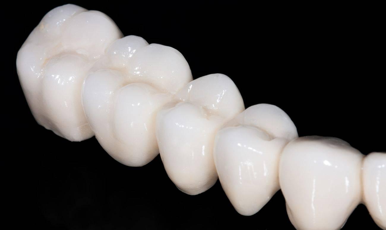 Керамические коронки на зубы: сколько стоят, плюсы и минусы