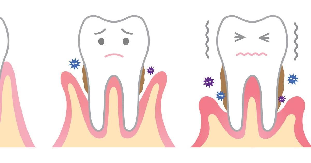 Ретинированные зубы: что это за патология и как ее исправить