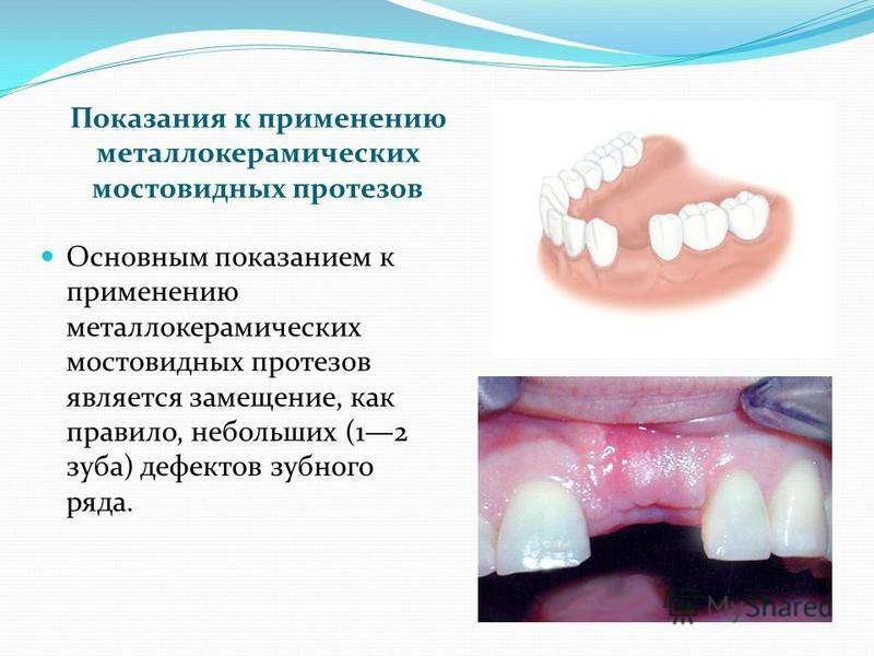 Протезирование зубов у детей и подростков