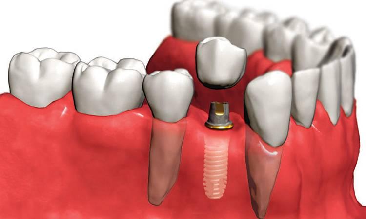 Сложности в протезировании, имплантации, удалении и лечении зубов при сахарном диабете