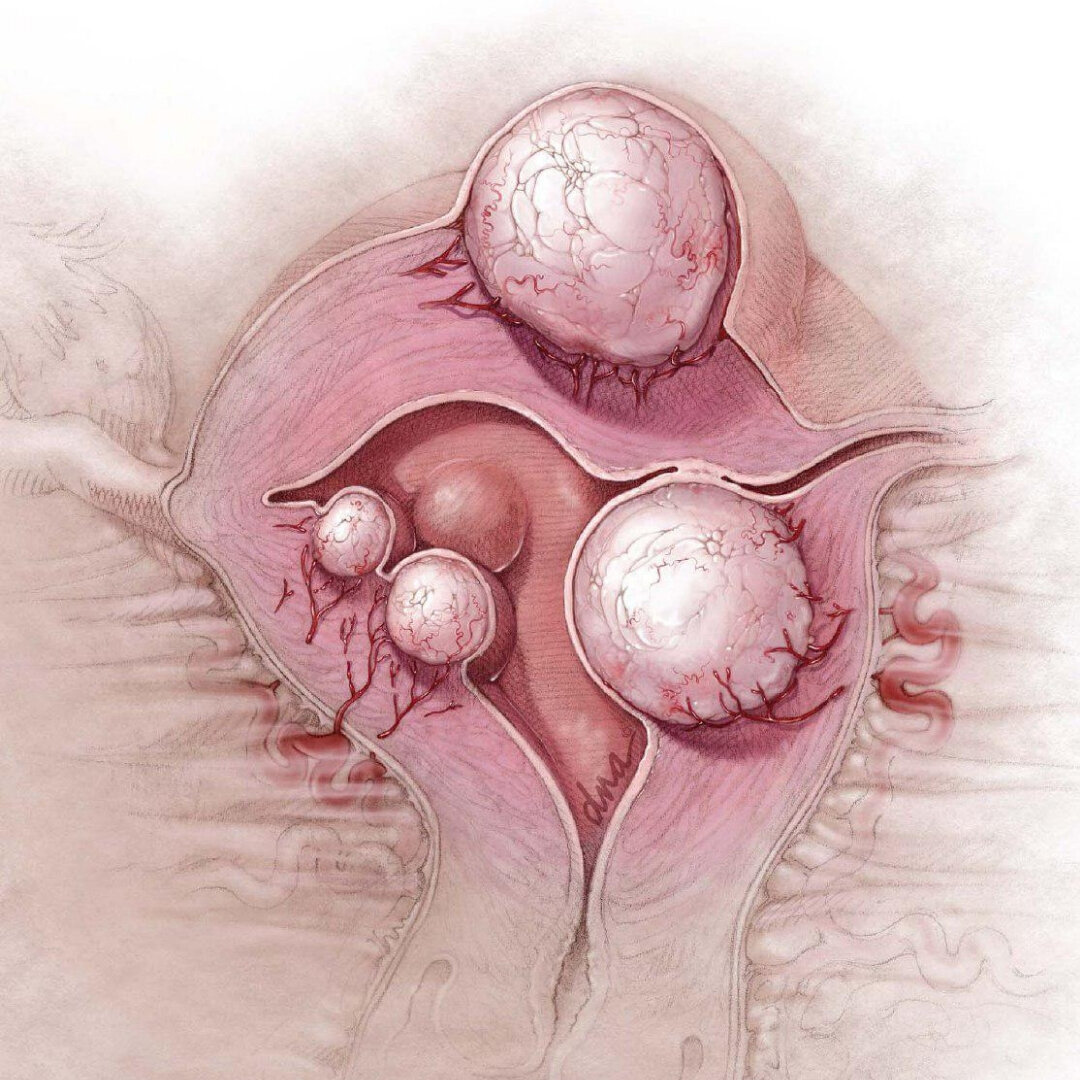 Задержка менструации при миоме матки