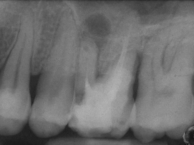 Сколько каналов в зубе