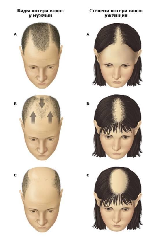 Себорейная алопеция: выпадение волос при дерматите у женщин и мужчин, лечение, фото, причины облысения