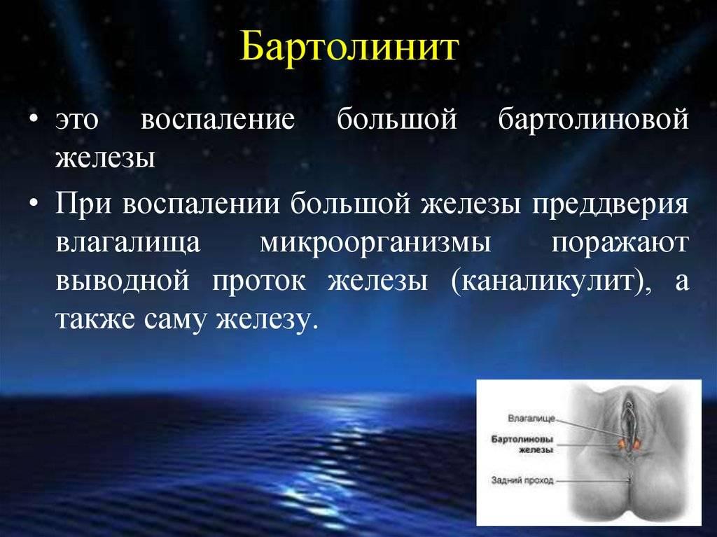 Лечение бартолинита без операции, причины абсцесса