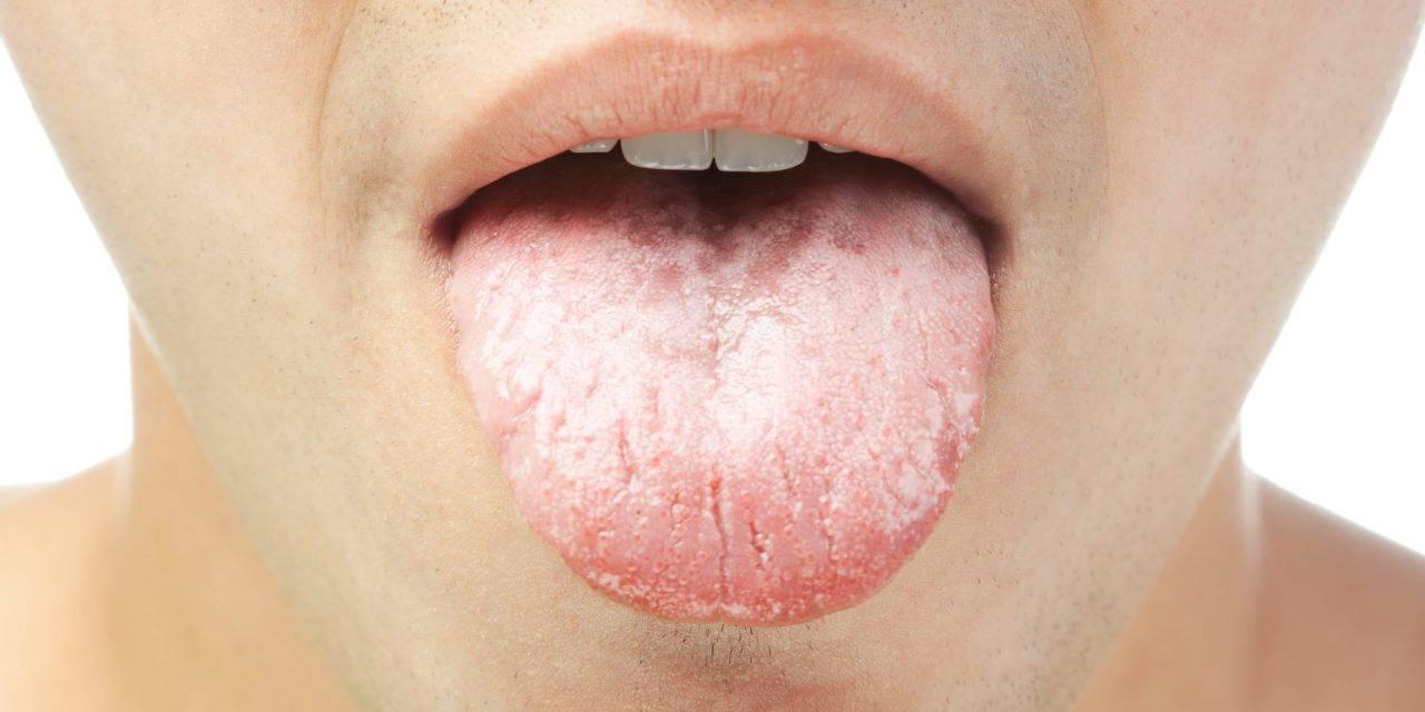 Виды кандидоза языка и способы лечения заболевания