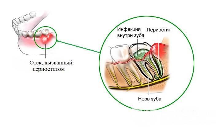 Отек десны в области зуба: причины, диагностика, лечение