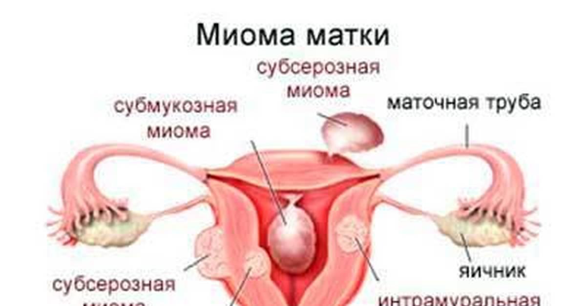 Лечение субсерозной миомы матки