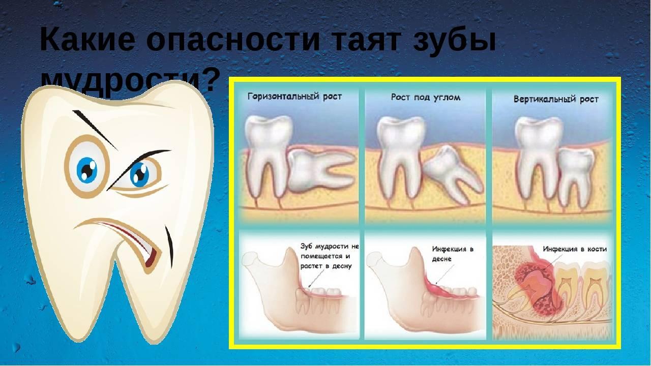 Что делать, если болит десна возле зуба. почему появляется боль при надавливании
