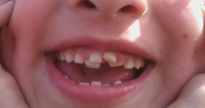 Почему у ребенка не растут молочные зубы