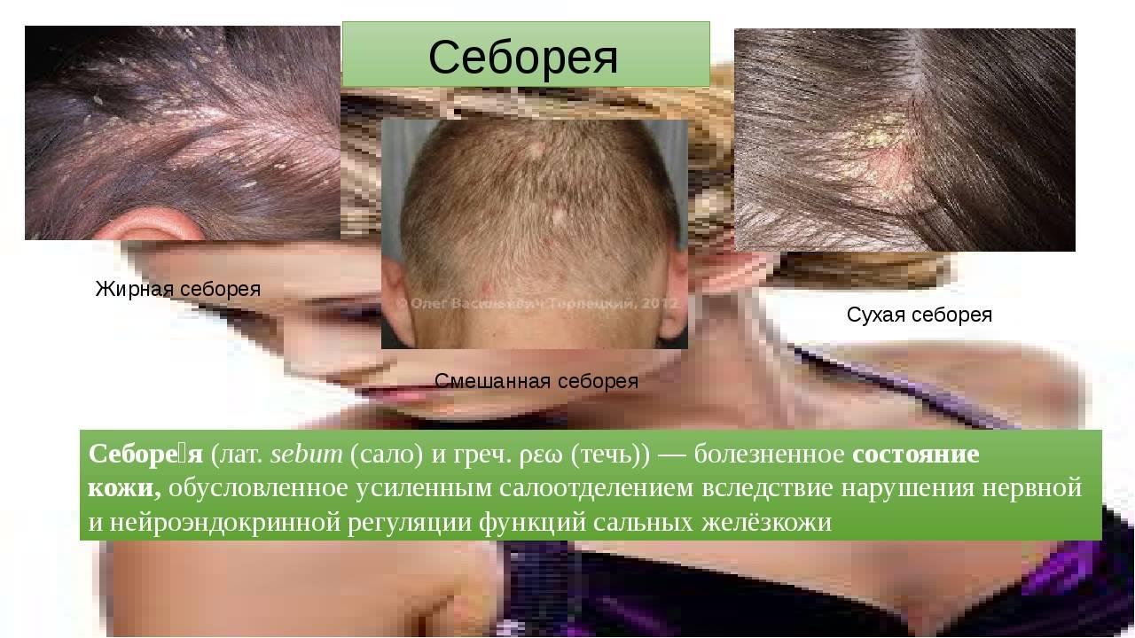 Образование себореи кожи головы. меры профилактики и лечения себореи.