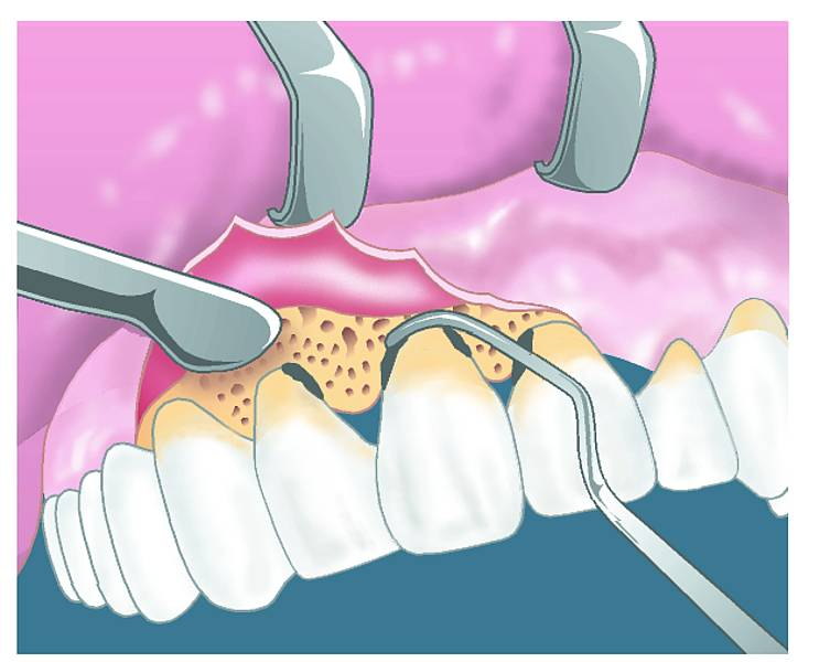 Почему появляется гной после удаления зуба и что делать