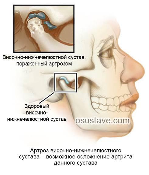 Как правильно лечить артрит челюстно-лицевого сустава