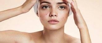 Мыло для умывания лица: топ-6 cредств от редакторов и экспертов beautyhack    мыло для жирной кожи лица