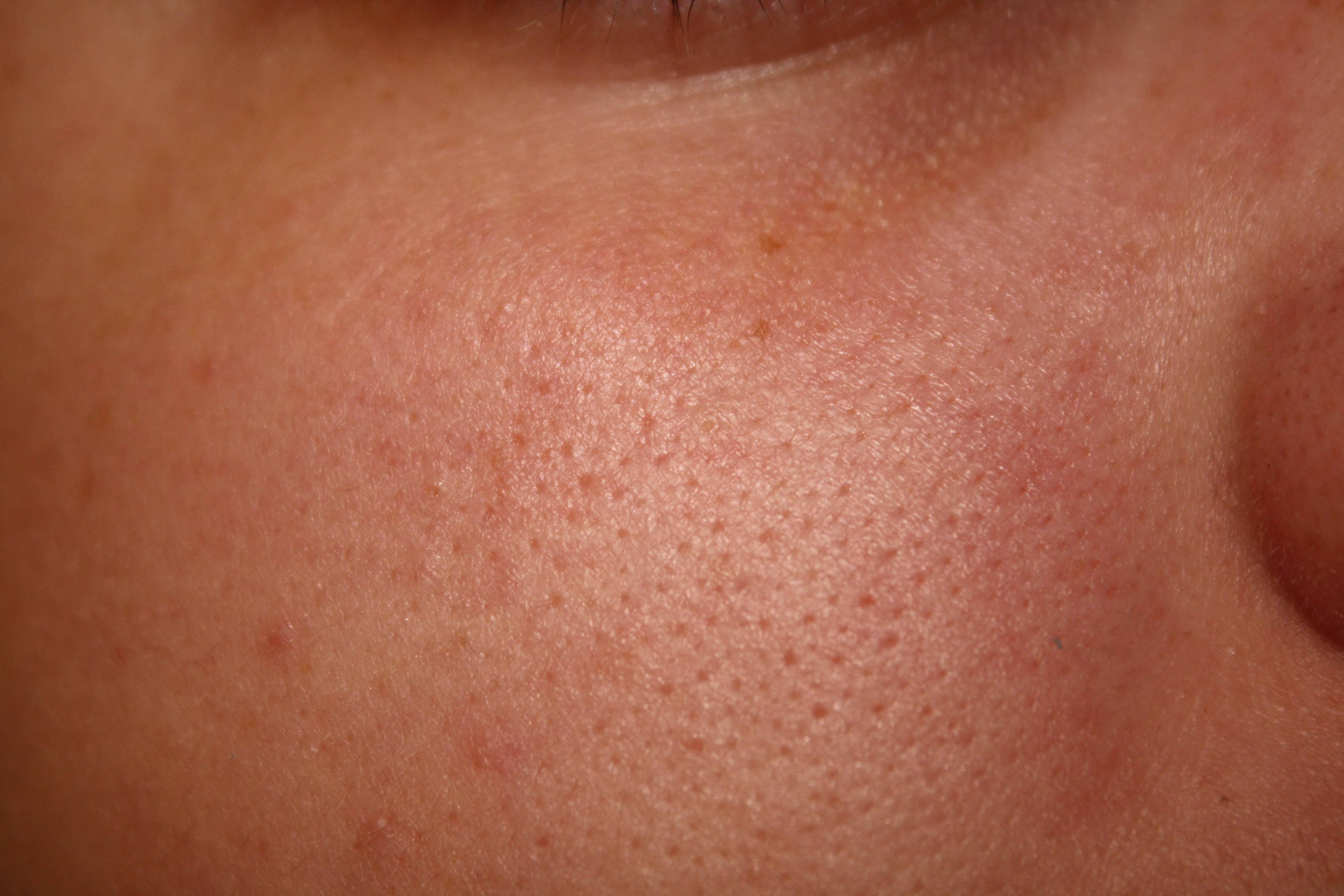 Расширенные поры на лице как избавиться от них эффективно не причиняя вреда коже
