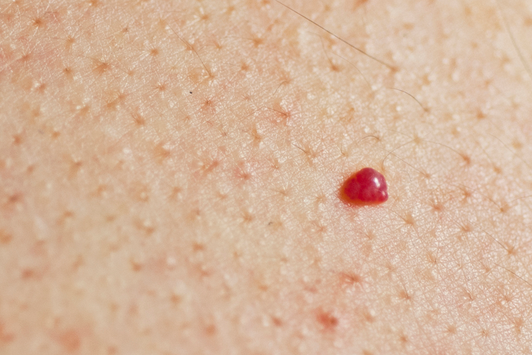 Ладони красные и чешутся у взрослого и ребенка: причины, лечение