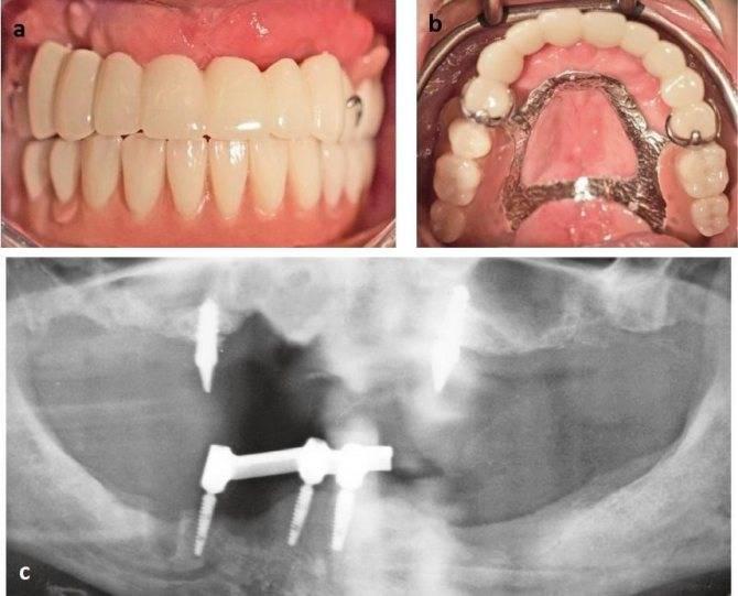 Сколько дней может болеть десна после имплантации зуба. почему у вас периимплантит