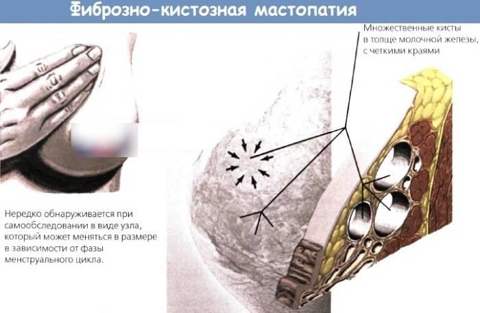 Фиброзно-кистозная мастопатия – болезнь цивилизации