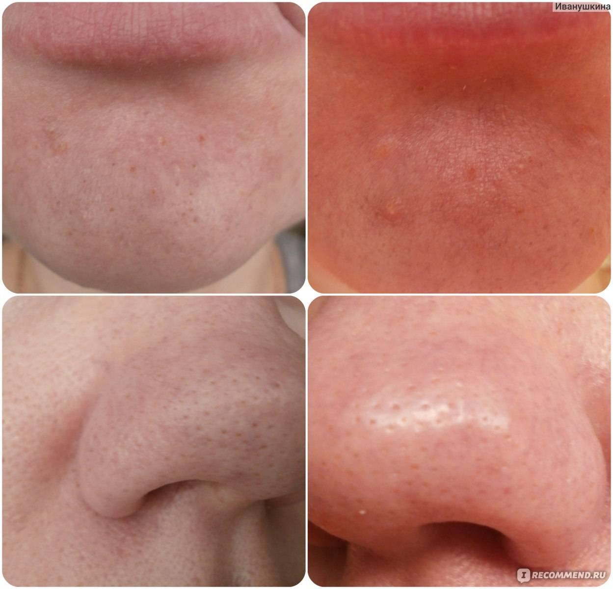 Салициловая кислота для лица: избавляемся от прыщей и пигментных пятен