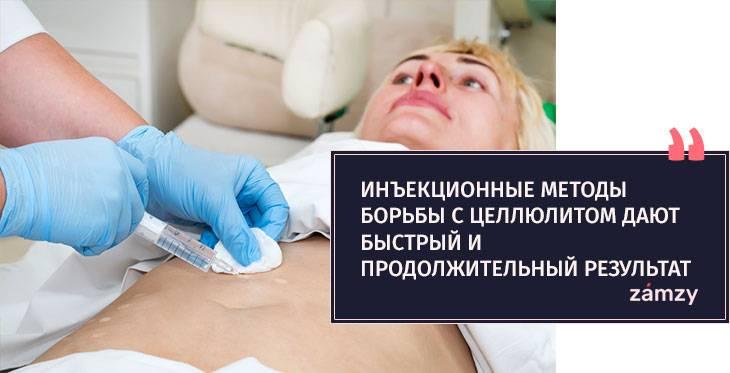 Мезотерапия лица — описание процедуры и результаты