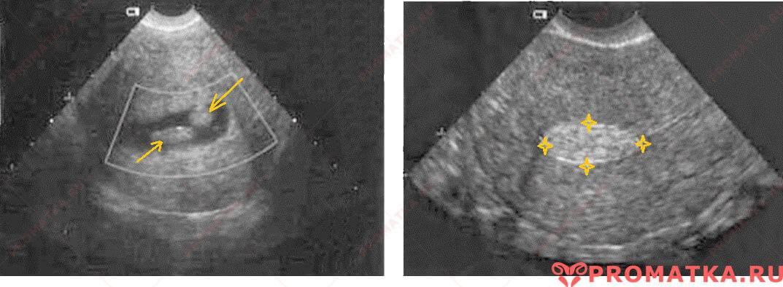 Причины появления жидкости в малом тазу у женщин и методы лечения