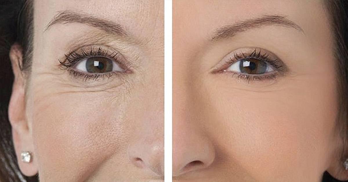 Отеки, «гусиные лапки» и морщины под глазами: как избавиться от первых возрастных изменений