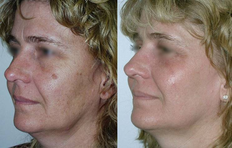 Фраксель, или лазерная шлифовка кожи — как работает процедура