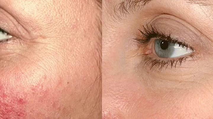 Топ-6 лазерных процедур для красоты лица и омоложения