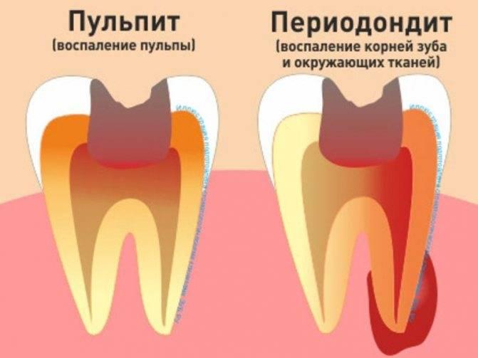 Апикальный периодонтит – как проявляется и как его лечить