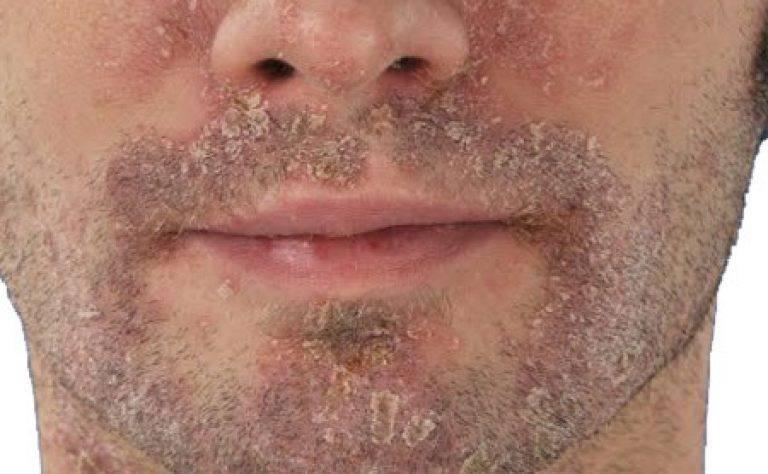 Что делать если шелушится кожа вокруг рта и губ