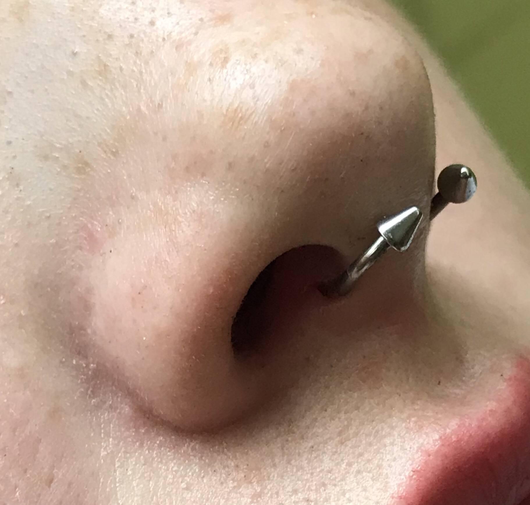 Пирсинг носа: последствия