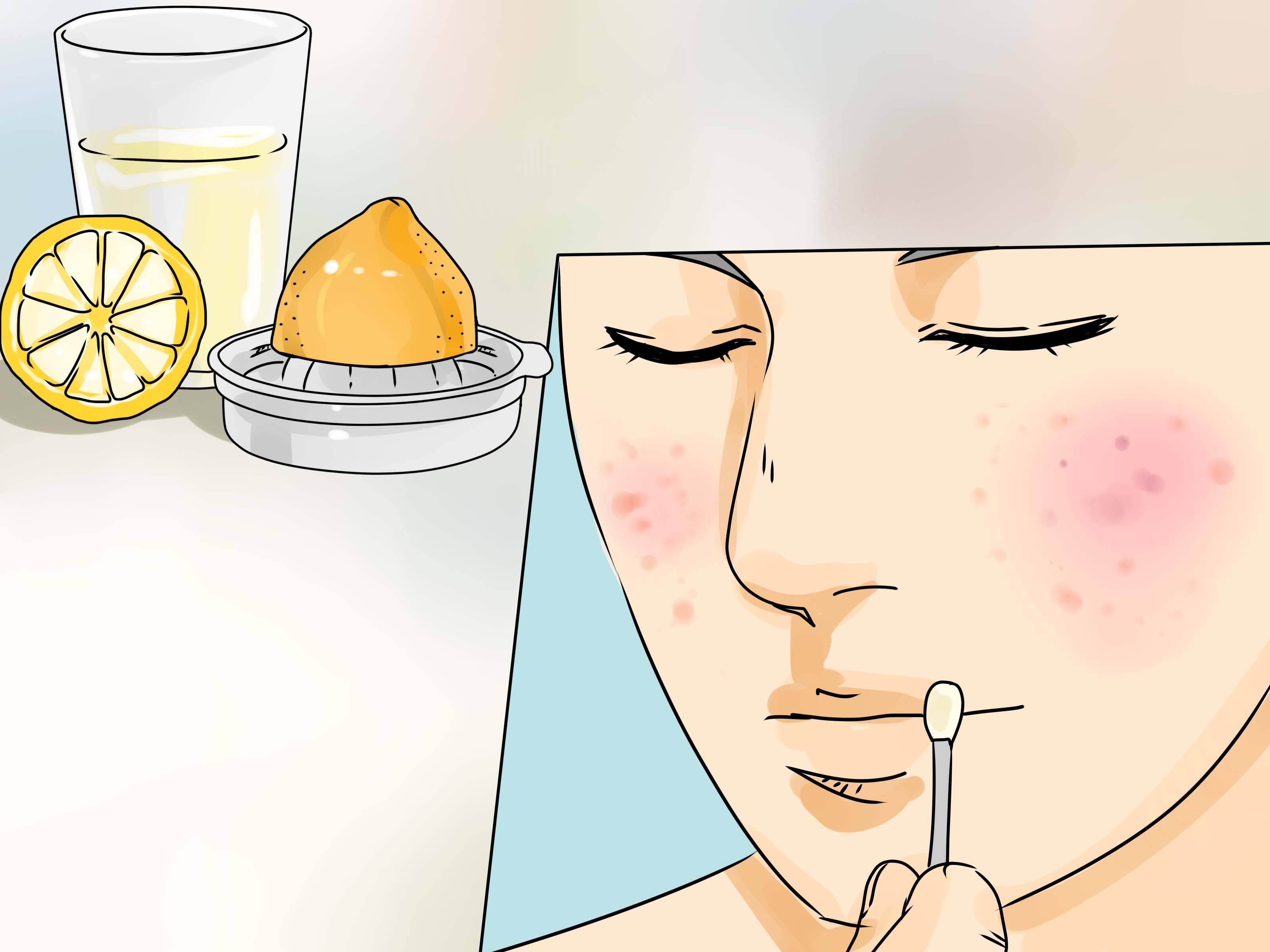 Прыщи на попе – причины и лечение