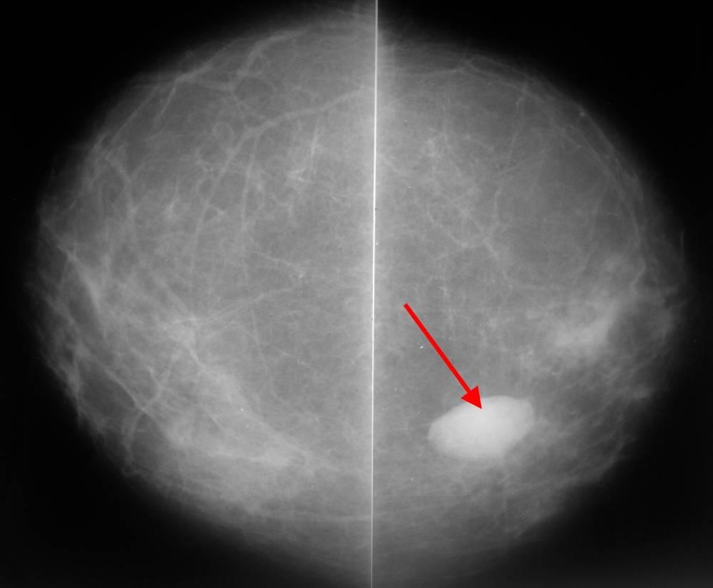 Опасность инволютивных изменений в молочных железах