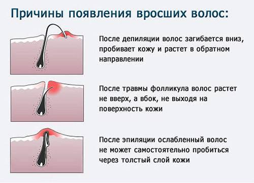 Как избавиться от вросших волос после эпиляции? у нас есть ответ на этот вопрос