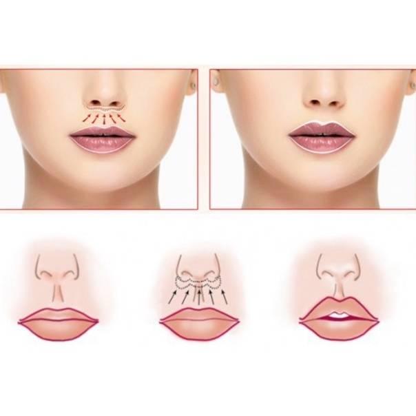 Как увеличить губы без пластики