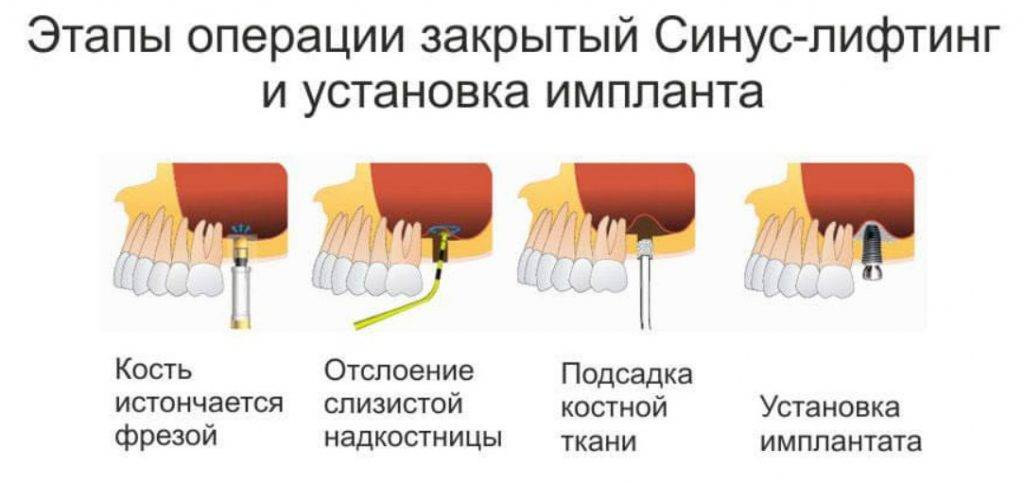 Синус лифтинг – методика при выполнении имплантологических вмешательств.
