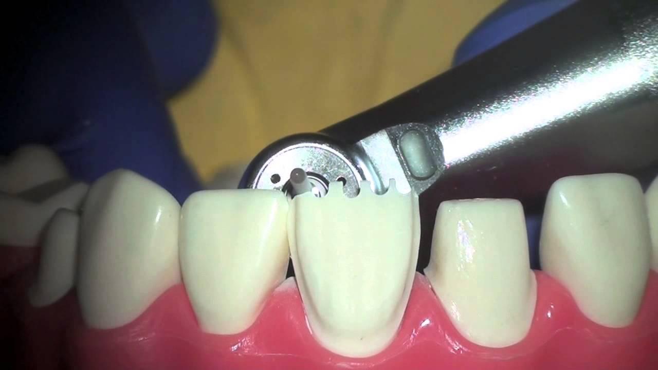 Препарирования зубов под виниры: техника и необходимость обточки