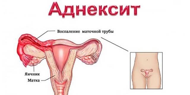 Лечение аднексита у женщин народными средствами