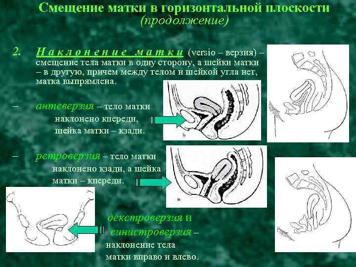 Положение матки anteflexio и другие виды. тело матки в anteflexio что это