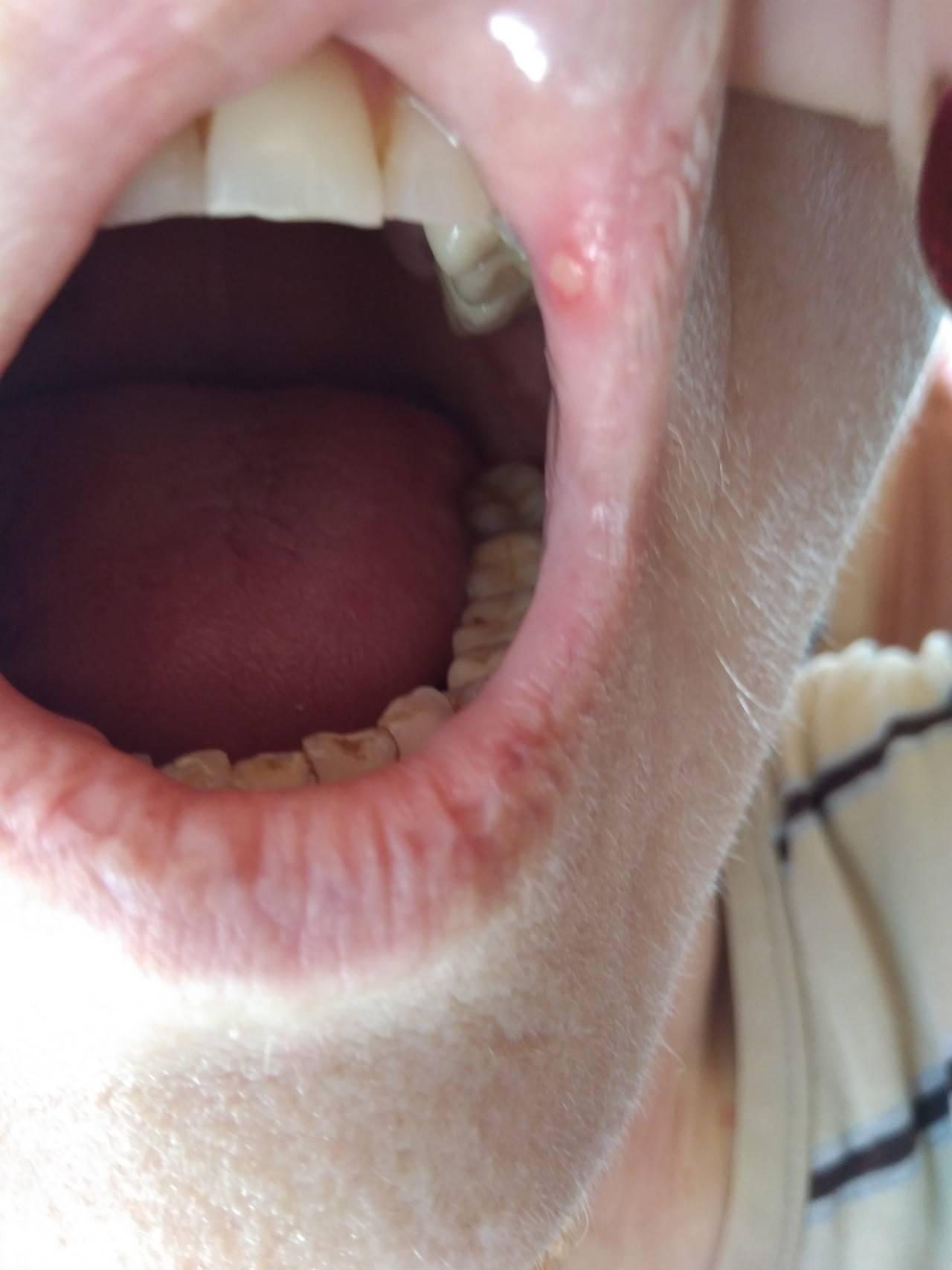 Как быстро вылечить болячки с внутренней стороны губы