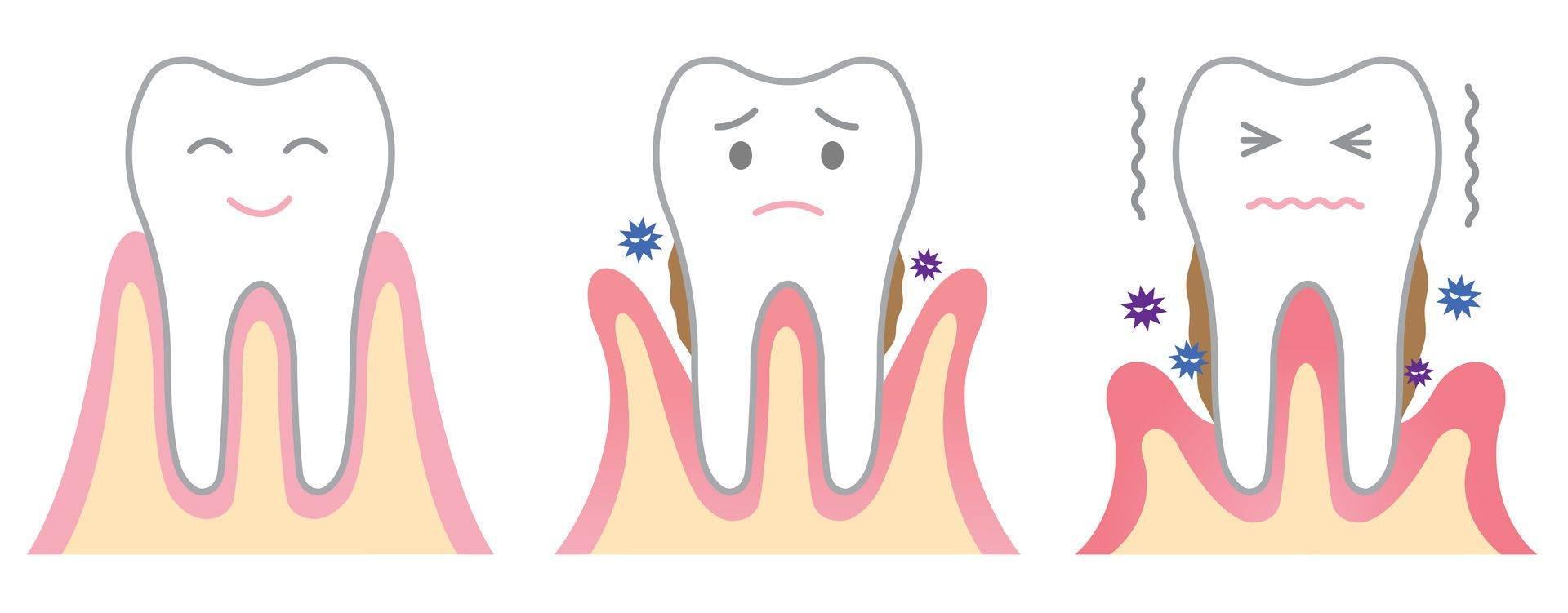 Что делать если кровоточат дёсны после чистки или при чистке зубов
