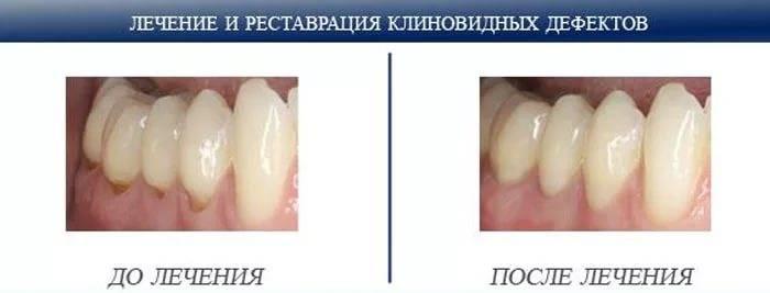 Клиновидный дефект зубов: признаки и лечение